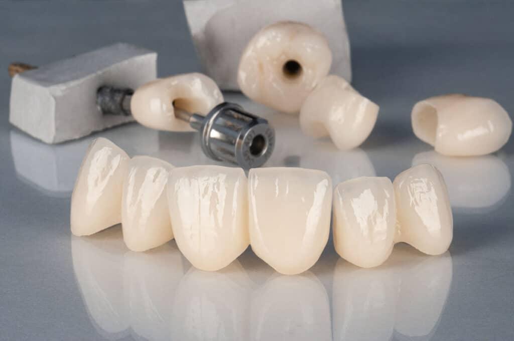 Implantologia2a