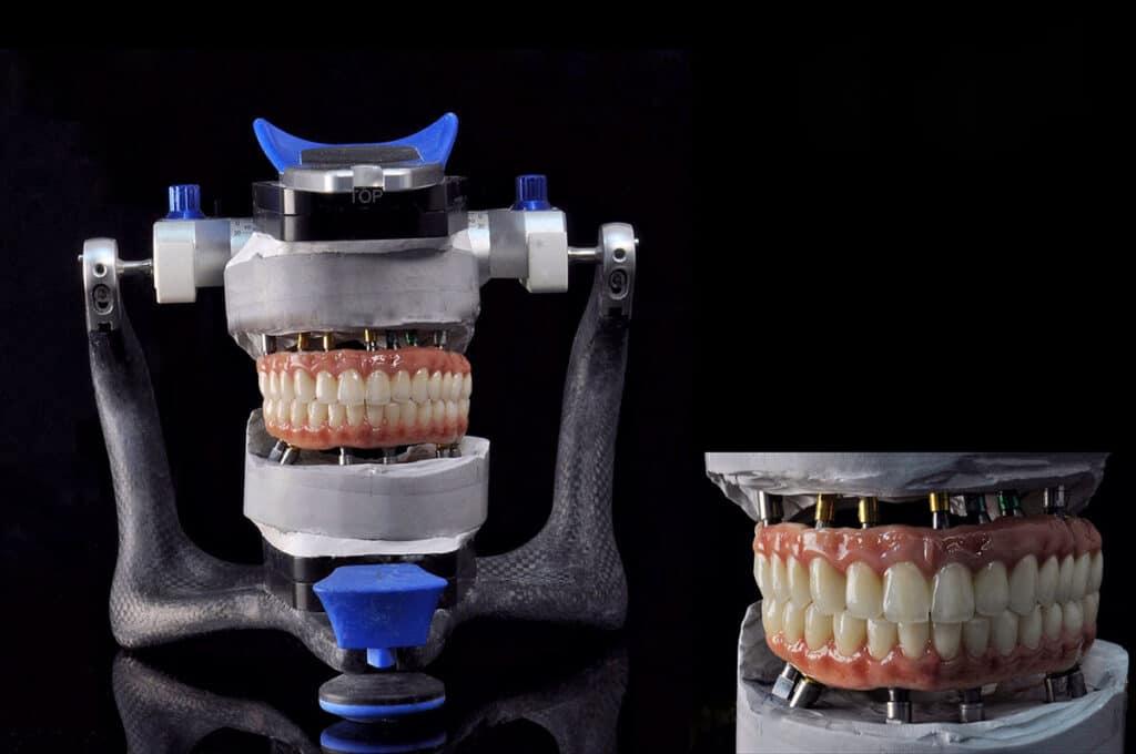 Implantologia3a