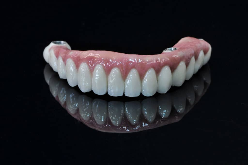 Pełna Ceramika Na Implantach